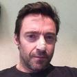 Igralec Hugh Jackman zbolel za rakom