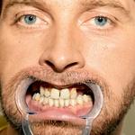 Takšno je trenutno  stanje Tomaževih  zob. (foto: Branko Teršek)