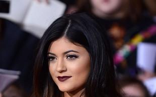 Ustnice Kylie Jenner - prej in potem!