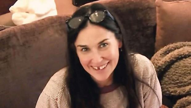 Demi Moore: Zaradi stresa ob zobe (foto: Profimedia)