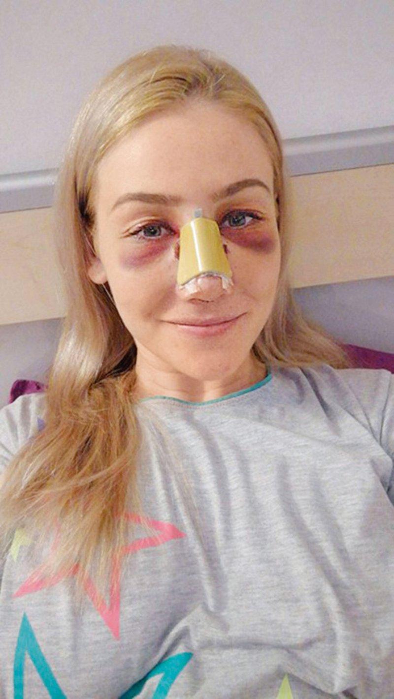 Po šovu na operacijo