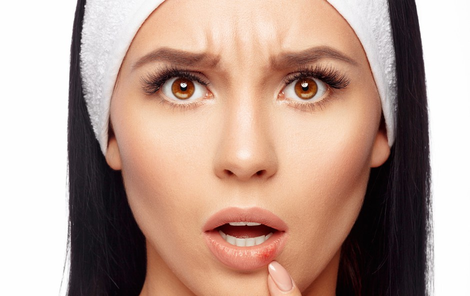 Pomoč v boju proti herpesu: Na voljo je več možnosti (foto: Shutterstock)