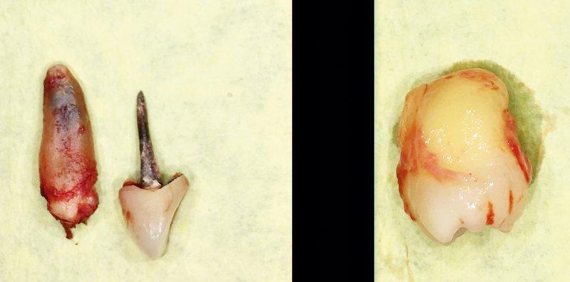 Vneti zobje lahko slabijo imunski sistem