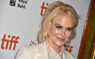 Nicole Kidman pri 51 letih brez ene same gubice na obrazu