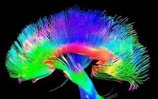 Prvo poskusno zdravljenje Parkinsonove bolezni z vnosom matičnih celic v možgane