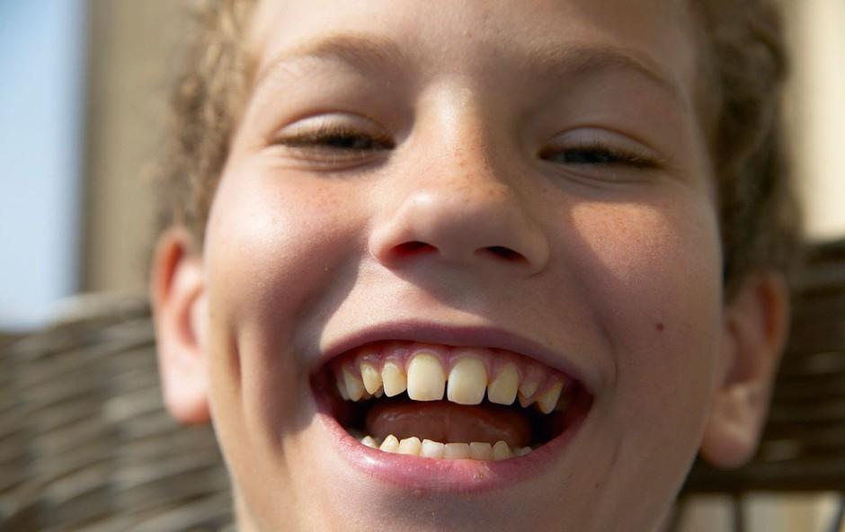 Razlaga sanj: Zobje so znamenje za razmišljanje in skrb za lep videz! (foto: profimedia)