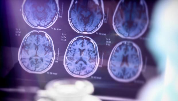 Ženski možgani se zdijo tri leta mlajši od moških enake starosti, kaže nedavna študija! (foto: profimedia)