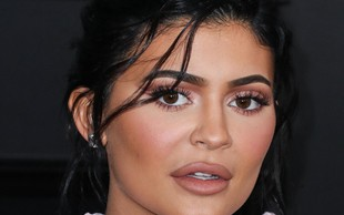 Kylie Jenner trdi, da ni bila na lepotni operaciji