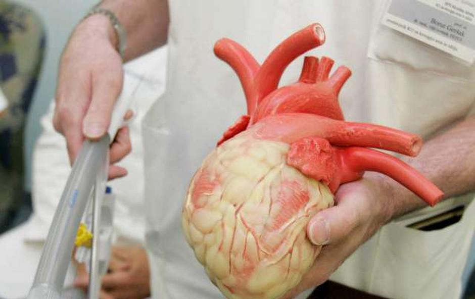Izraelski znanstveniki natisnili srce iz človeškega tkiva (foto: STA)